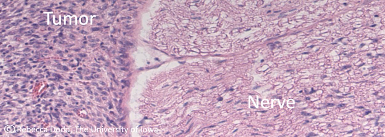 Nerve Surrounding Tumor